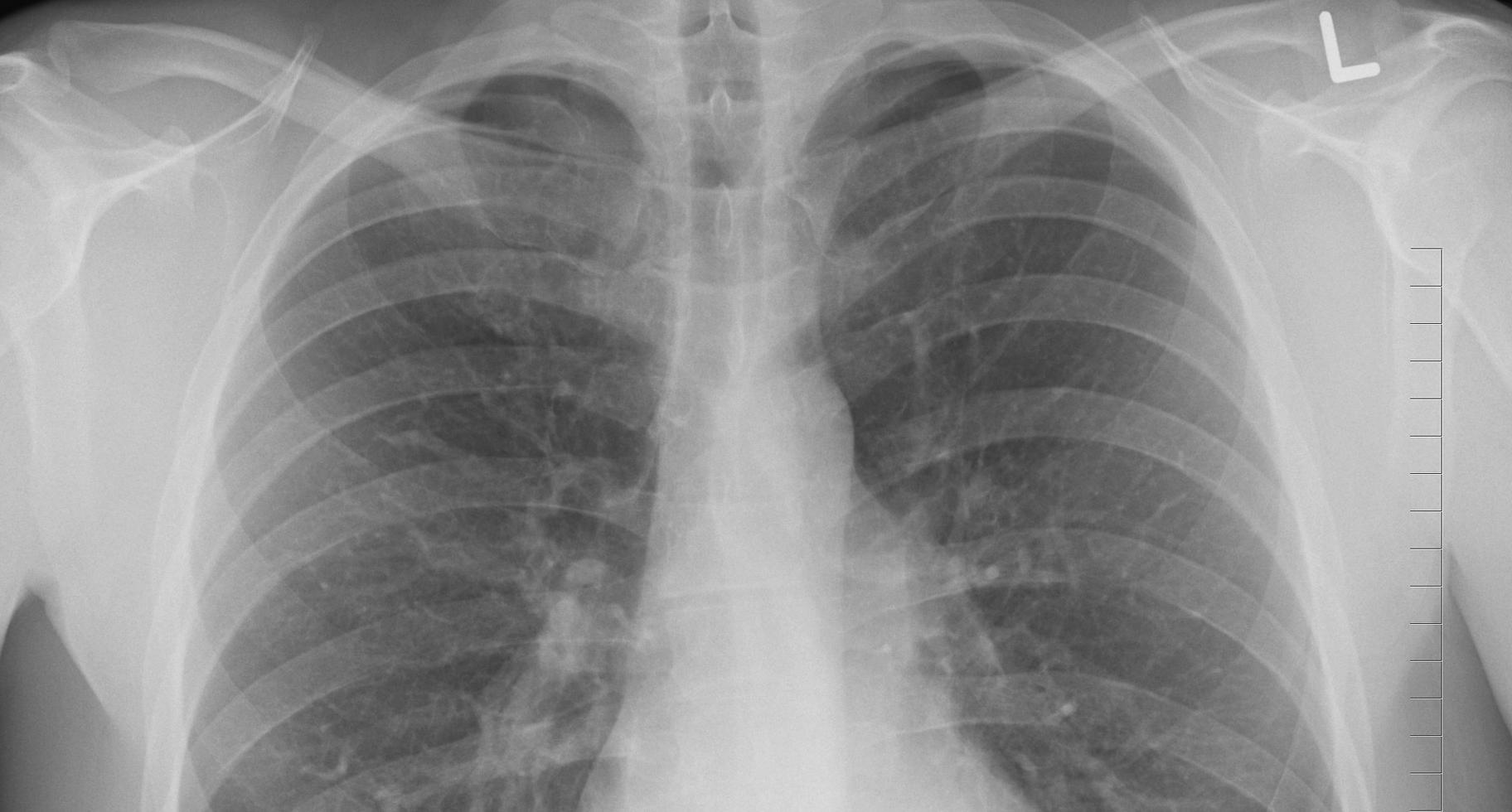 Pneumologie/allergologie